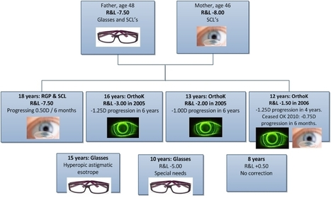 Use of contact lenses in myopia control: A case study   Contact Lens Update   Myopia Control and Orthokeratology   Scoop.it