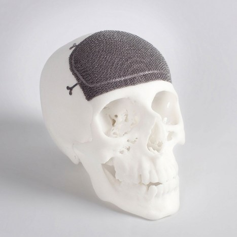 3D printed implants gain traction - 3D Printing Industry | 3D printen | Scoop.it