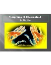Symptoms of Rheumatoid Arthritis | Rheumatoid Arthritis | Osteoarthritis | Knee Arthritis | Scoop.it