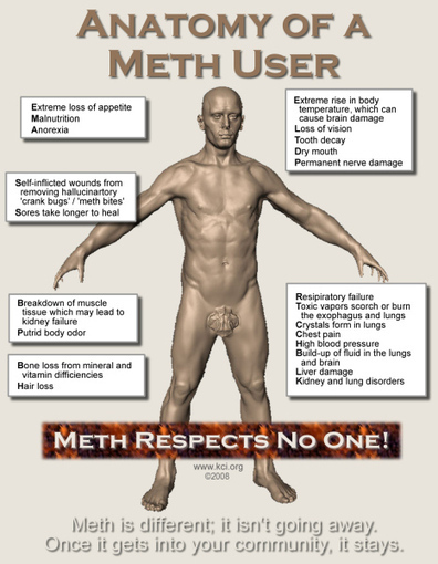 Quest 1 - How Methamphetamine Destroys Your Health | Sustain Health | Beks OHS Quests and Journey | Scoop.it