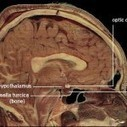 Scientists' depressing new discovery about the brain | Law, Politics, Causes & Advocacy | Scoop.it