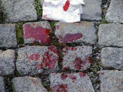 Dossier > Les éclaboussures de sang : taille, trajectoire... | TPE Maths-PhysiqueChimie | Scoop.it