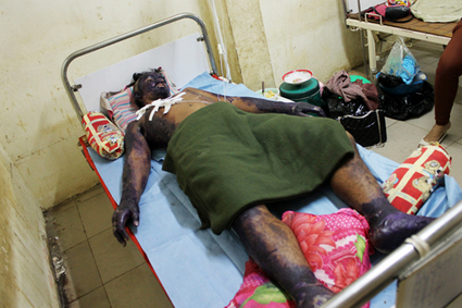 Caged soldier suffers third-degree burns | National | National | Cambodian News | Scoop.it