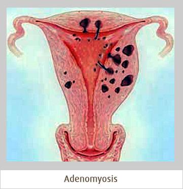 Adenomyosis - CIGS | Conditions | Scoop.it