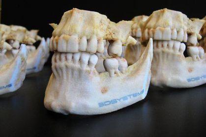 Des imprimantes 3D pour la chirurgie réparatrice | CDI RAISMES - MA | Scoop.it