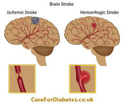 Diabetes Complications - Stroke - Cure Diabetes | Diabetes in the News | Scoop.it