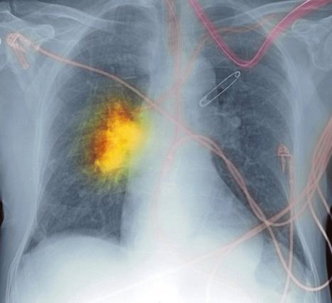 Syöpäsolu voi elää ikuisesti | TE2 | Scoop.it