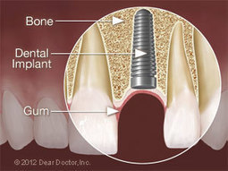 Dental Implant Surgery | Health Is Wealth | Scoop.it