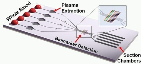 New blood analysis chip could lead to disease diagnosis in minutes | Complex Insight  - Understanding our world | Scoop.it
