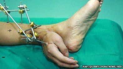 Severed hand kept alive on ankle | nawak | Scoop.it