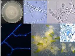 Home - Tulasnella calospora AL13/4D v1.0 | Mycorrhizal fungal genomes | Scoop.it