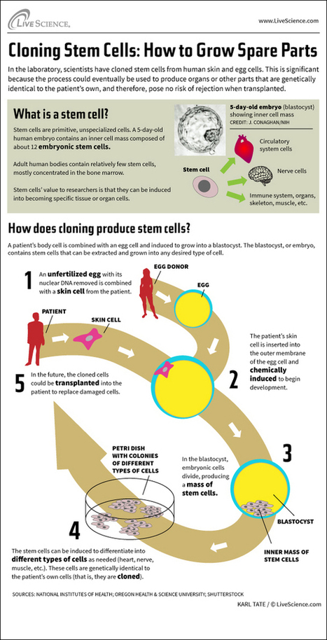 How Stem Cell Cloning Works (Infographic) | ciberpocket | Scoop.it