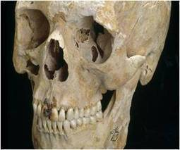 Oral Health in Britain Better During Roman Era | historian: science and earth | Scoop.it