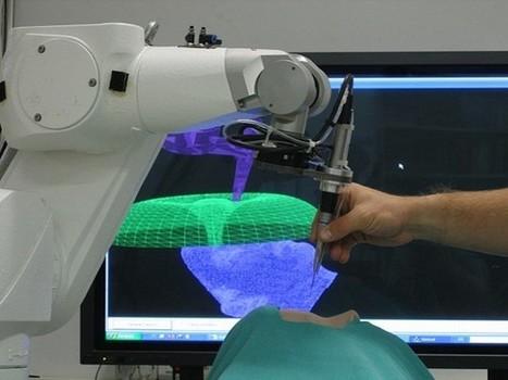 Mejorar visión 3D en robótica ayudaría a la medicina   Other World   Scoop.it