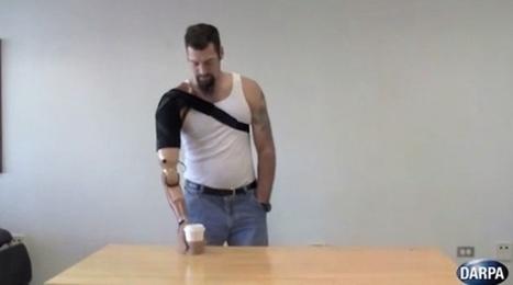 Le bras bionique qui redonne le sens du toucher | 694028 | Scoop.it