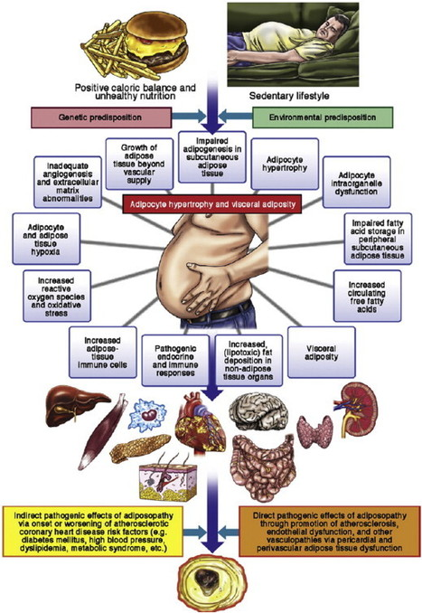 Obesity: consensus statement from National Lipid Association | Heart and Vascular Health | Scoop.it