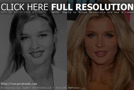 Joanna Krupa Plastic Surgery Before and After - Facial Job !! | Plastic Surgery Before and After Photos | Scoop.it