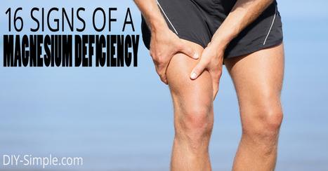 16 Signs of Magnesium Deficiency   Natural Wellness & Health   Scoop.it