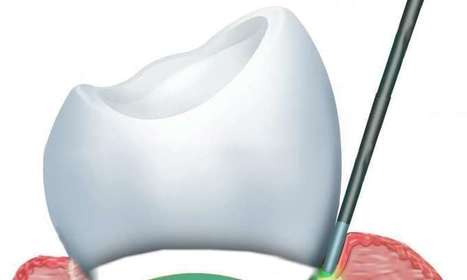 Study suggests benefits of laser treatments for dental problems | Sustain Our Earth | Scoop.it