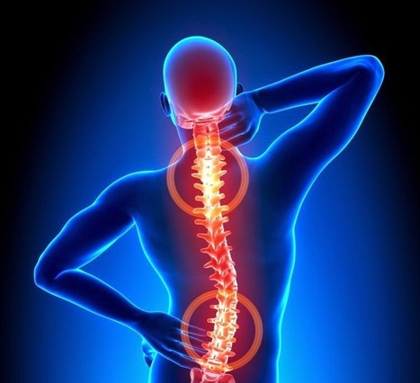 Does Spinal Manipulation Enhance a Stroke Risk? | Chiropractic | Scoop.it