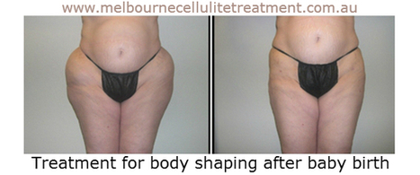 Ideal Body Shaping Treatment | Post pregnancy body shaping | Scoop.it