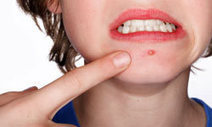 How to Get Rid of Acne. | Healthcare | Scoop.it