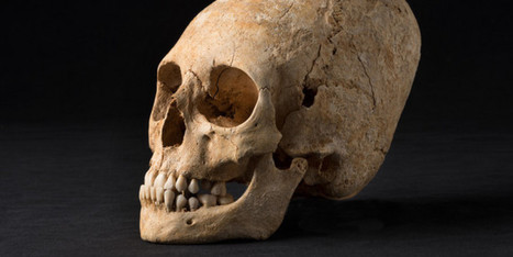 Deformed Skull From Dark Ages Unearthed In France - Huffington Post   The Neolithic Period   Scoop.it