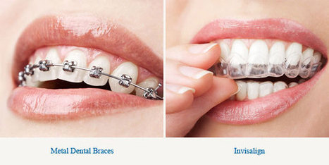 Repair your teeth using braces and invisalign | General | Scoop.it