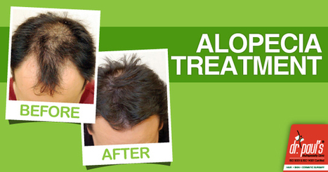 Alopecia Treatment at Dr.Paul's | Skin Care | Scoop.it