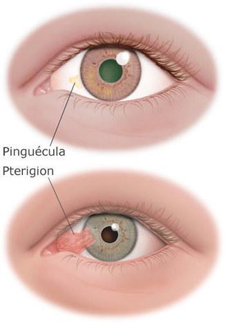 Un bultito en el ojo llamado pinguécula | SALUD OCULAR: GAFA TÉCNICA, OJO SECO Y DEPORTE GRADUADA | Scoop.it