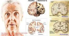 obat alzheimer herbal | Obat Herbal Ace Max's | Scoop.it