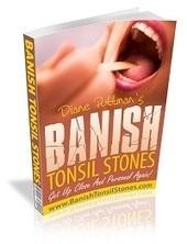 stop tonsil stones | tonsilstonesproblems blog | Scoop.it