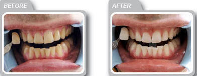 Expect the perfect dental solution from Smile60 teeth whitening in Farnham | John Marc | Scoop.it