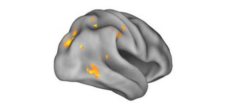 Researchers find neural compensation in people with Alzheimer's-related protein | Social Neuroscience Advances | Scoop.it