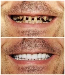 smilebrightlydds.com | dentist in morristown | Scoop.it