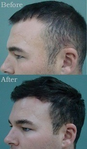Best Hair Transplant Clinic in Sharjah   Hair Transplant Dubai   Laser Treatment   Scoop.it