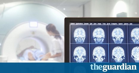 Google DeepMind and UCLH collaborate on AI-based radiotherapy treatment | News Through Tech ( or is it Tech through News?) | Scoop.it