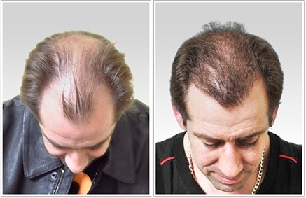 FUE Transplant in India | FUE Hair Transplant in India | Scoop.it