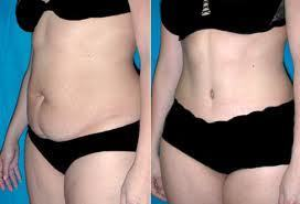 Con la liposucción puedes bajar esos gordos de mas   belleza  y  salud   Scoop.it