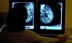 Cancer Experts Cast Doubt on Breast Cancer Screening Benefits. | Cancer - Advances, Knowledge, Integrative & Holistic Treatments | Scoop.it