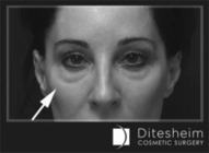Eyelid Bags make me look older. What can I do? - Ditesheim Cosmetic Surgery | Premier Charlotte Plastic Surgery | Breast Augmentation Liposuction Mommy Makeover Facelift | Health, Fitness & Fun | Scoop.it