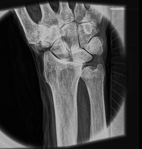 A leap forward in X-ray technology showing soft tissue | Medical Engineering = MEDINEERING | Scoop.it