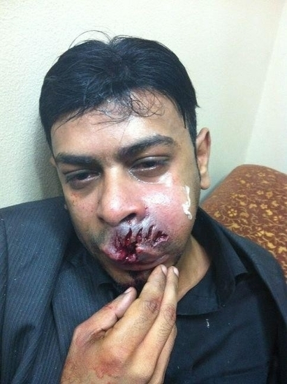 @NaderAbdulEmam severely injured in Bahrain:  1/12/2012 | Human Rights and the Will to be free | Scoop.it