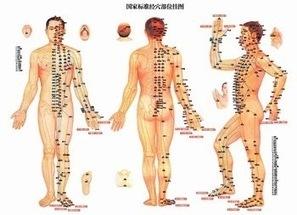 efficacité de l'acupuncture dans le rhumatisme du genou - épanews   Médecine douce   Scoop.it