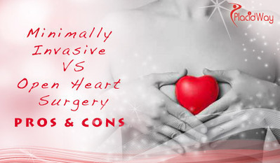 Minimally Invasive Surgery versus Open Heart Surgery Pros and Cons | PlacidWays! | Scoop.it