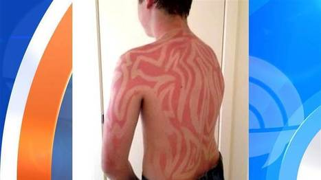 Sunburned on purpose? See the so-called body art | Kickin' Kickers | Scoop.it