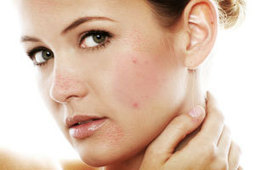 Effective Ideas for Natural Acne Treatment   Health   Scoop.it