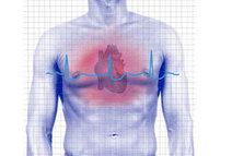 Heart Disease: Types, Prevention & Treatments | Heart Disease-Advances,knowledge,integrative & Holistic: Video | Scoop.it