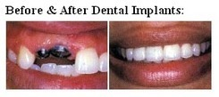 Best Dental Implant Is Sure To Return Your Smile & Confident | Cosmetic Dentist | Scoop.it