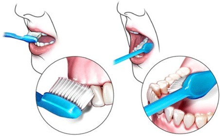 How to Properly Brush Teeth and Clean Dentures in Bellevue WA by Shawn Denture | Dental Implants Seattle | Scoop.it
